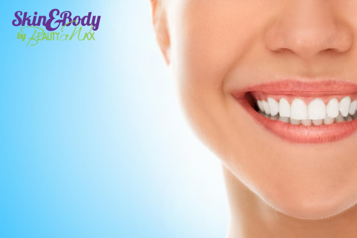 teeth whitening services south florida